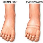What causes diabetic foot swelling?