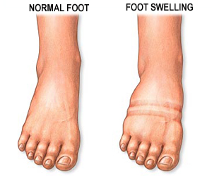diabetes foot swelling