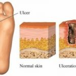 What causes a diabetic foot sore?