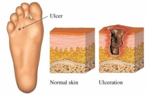 diabetic foot sore