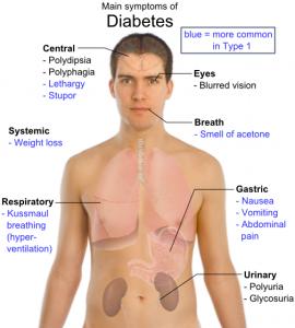 symptons of diabetes