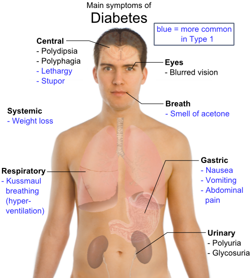symptoms of diabetes Are you worried that you, your child or someone you know, may have diabetes having some of the signs of diabetes doesn't mean you definitely have the condition, but you should always contact your gp, just to make sure.