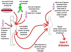 What is the Cause of Diabetes?