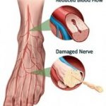 Diabetes and foot pain
