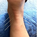 Acupuncture Therapy For Diabetes